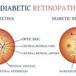 Diabetic Retinopathy Treatment in Ludhiana